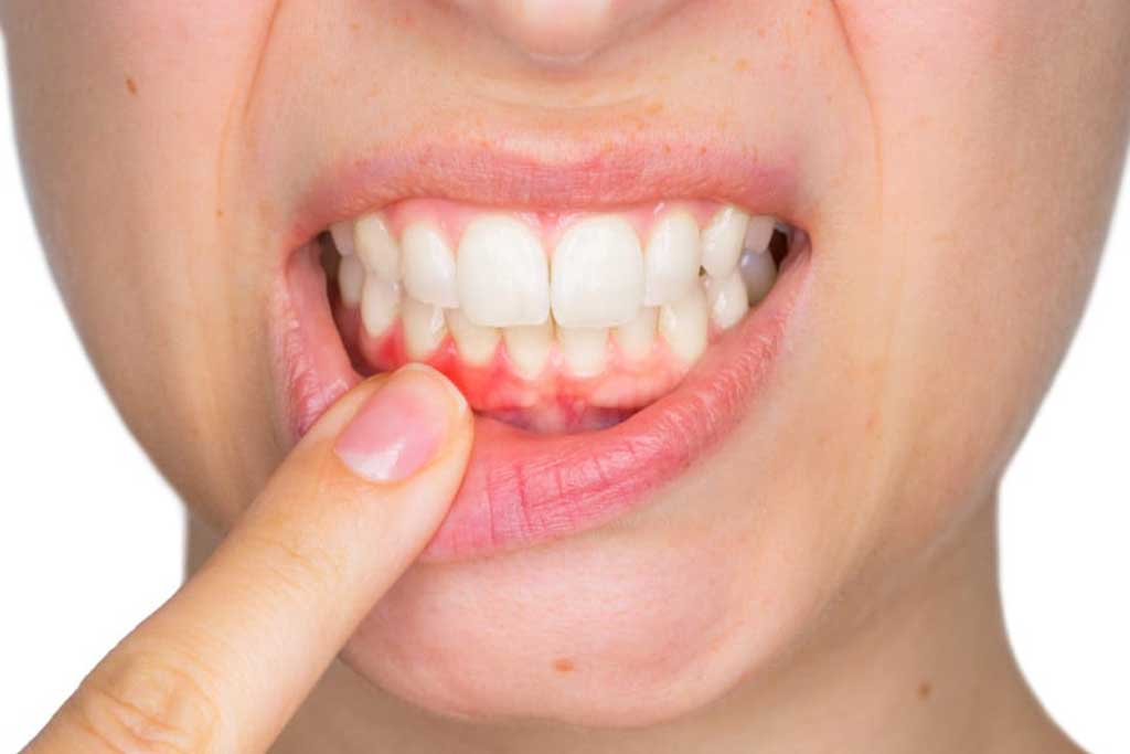 Herbal Remedy For Inflamed Gums